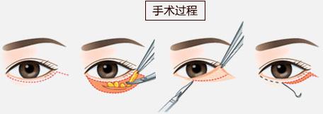 手术去眼袋