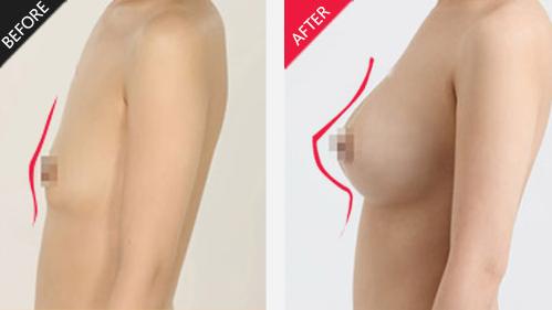 假体隆胸前后对比