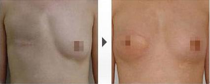 隆胸修复前后对比