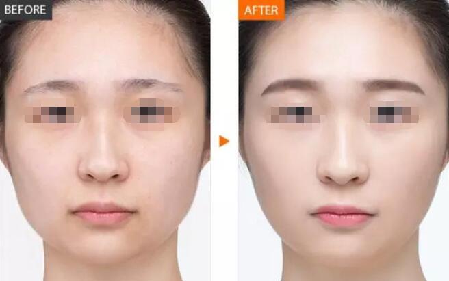 采光嫩肤祛除黑眼圈作用机理