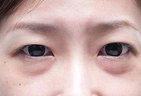 激光祛眼袋