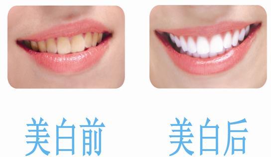 冷光美白牙齿 让自信笑容时刻伴随