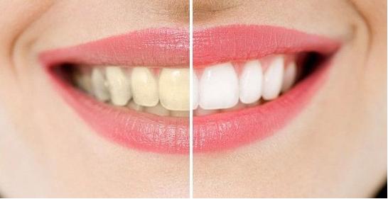 美白牙齿有哪些好处?