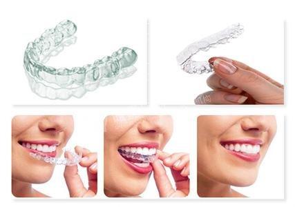 青少年做哪种牙齿纠正好?