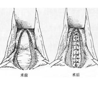 阴道紧缩术后会影响生育吗?