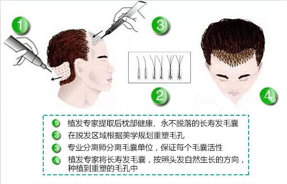 袁玉坤植发