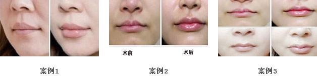 唇部整形手术的护理怎么做