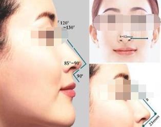 假体隆鼻疼吗,需要多长时间
