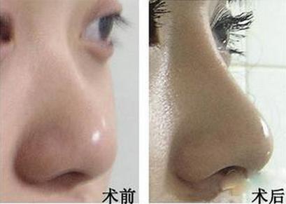 自体软骨隆鼻手术价格