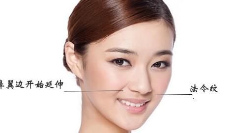 鼻尖整形术后应该要怎么护理