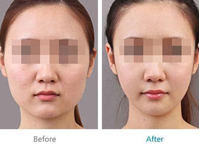 上海改脸型手术的价格是多少
