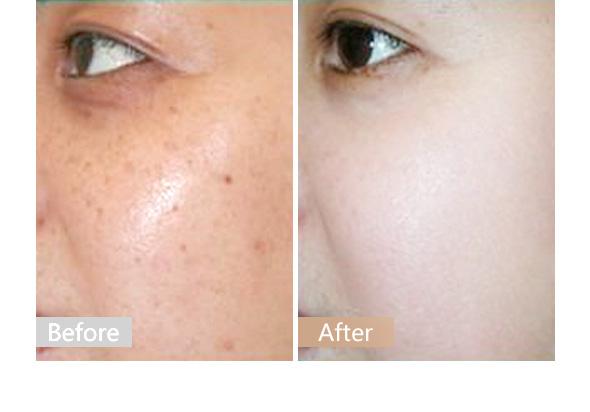 复合彩光可以治疗雀斑晒斑吗?