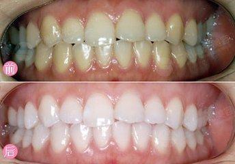 牙齿 美白