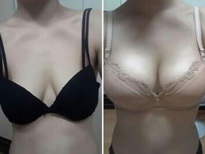 韩式假体隆胸手术有什么特点