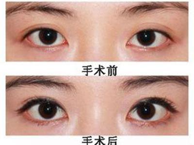 上海哪里做双眼皮修复术较好