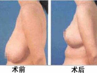 女性乳房下垂矫正注意事项