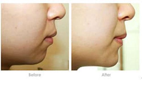 玻尿酸隆下巴有哪些注意事项