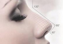 上海假体隆鼻后鼻子自然吗