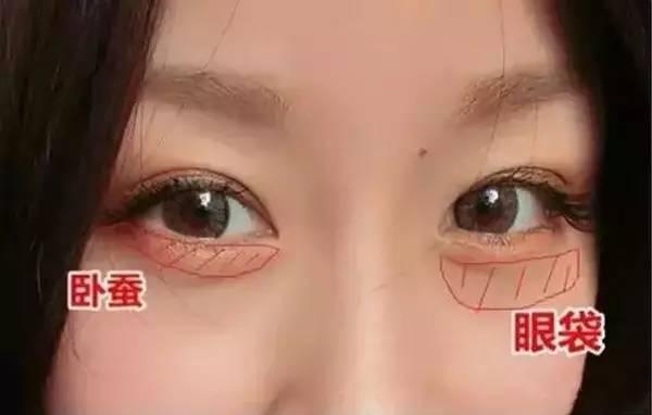 卧蚕和眼袋