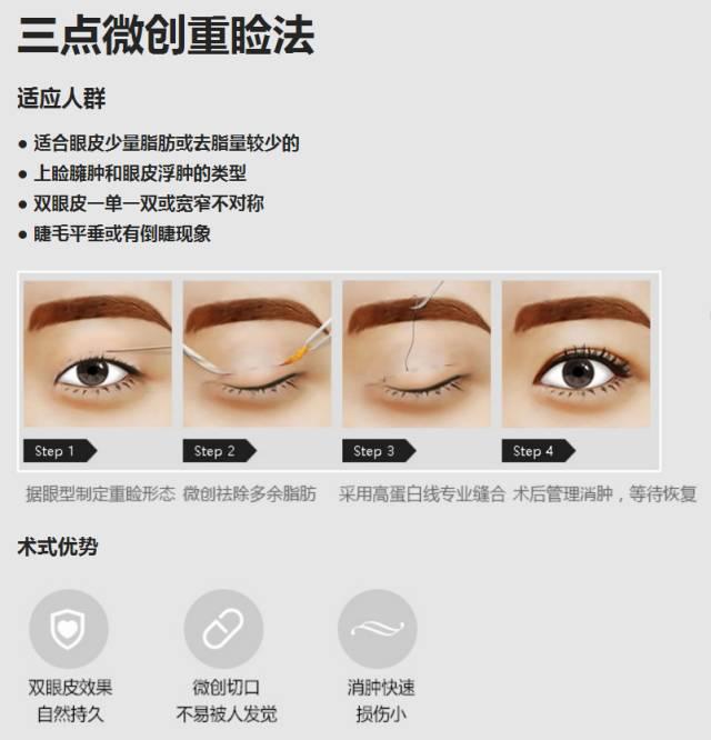 上海哪家双眼皮好