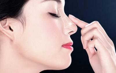 上海美莱Artline艺塑鼻雕