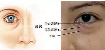 卧蚕和眼袋的区别