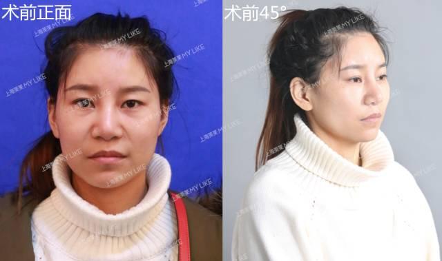 上海美莱鼻修复,帮助了经历过2次鼻整形失败的她