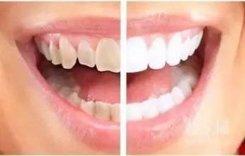 上海美莱冷光美白牙齿