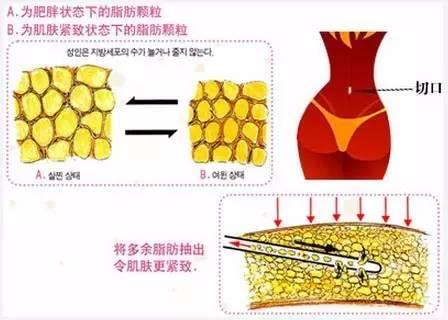 上海美莱腰部吸脂减肥