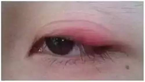 双眼皮贴导致眼周发炎