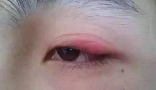 双眼皮红肿