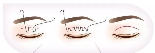 上海美莱美容埋线法双眼皮整形