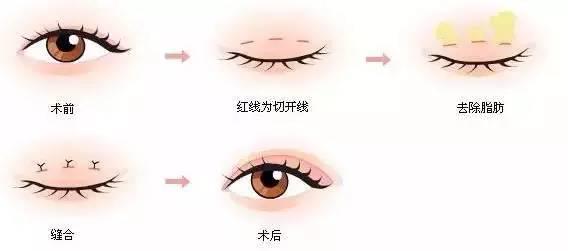 上海美莱美容微创双眼皮双眼皮整形