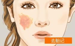 上海美莱激光去除胎记