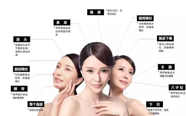 上海美莱玻尿酸填充