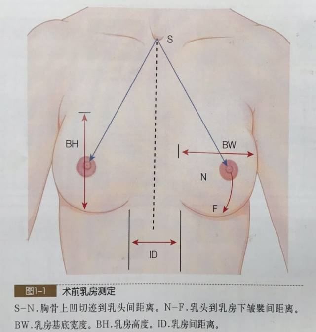 假体隆胸前测量