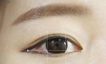 上海双眼皮整形