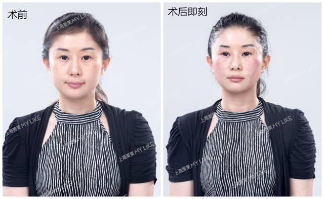 上海美莱真人案例