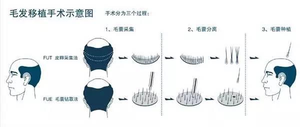 上海美莱植发过程图