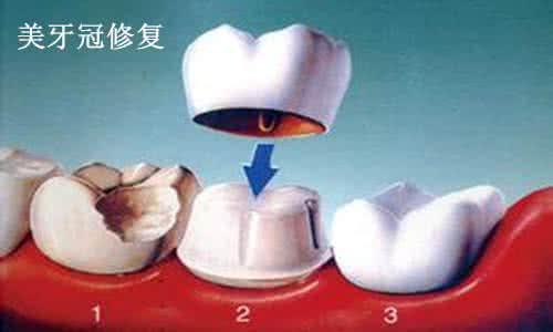 美莱美容冠牙齿修复