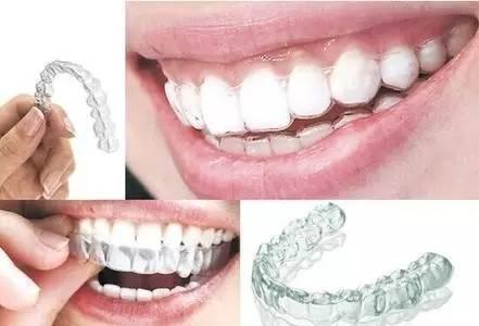隐形牙齿矫正效果