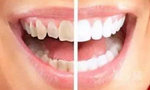 牙贴面美白