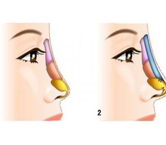 上海美莱隆鼻假体
