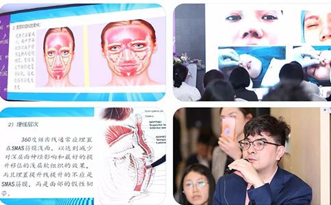 上海美莱种植发际线,摆脱了大额头