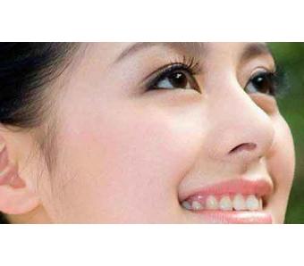 上海美莱医院做双眼皮整形手术