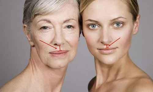 丰面颊术后应该如何护理?