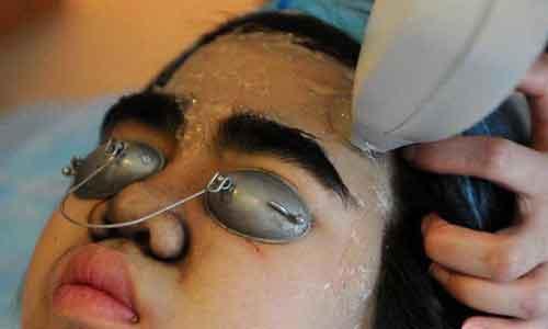 脸上长了晒斑,激光真的可以去掉吗?