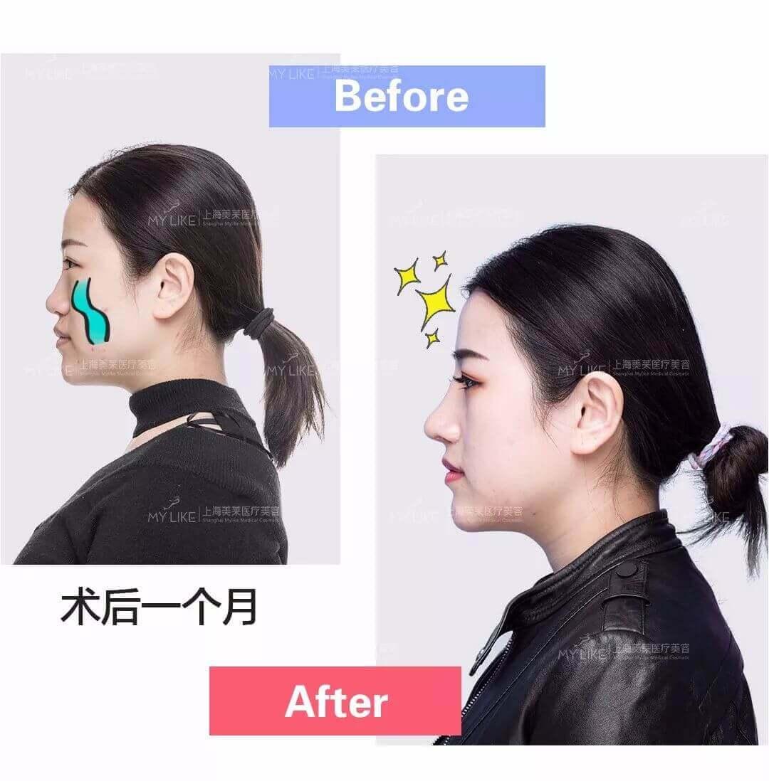 上海美莱吴淑琴医生受邀参加全国激光美容与面部年轻化学术大会