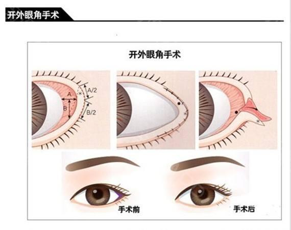 王琳美莱明眸翘睫大眼术技术指导