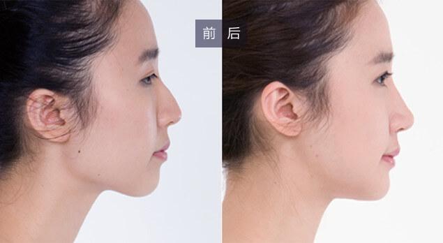 胸部整形专家白6月坐诊上海美莱